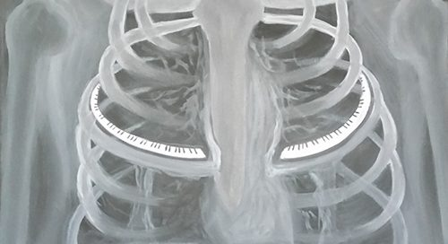X-ray of chest with piano keys